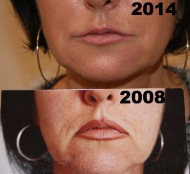 Traitement de l'ovale du visage