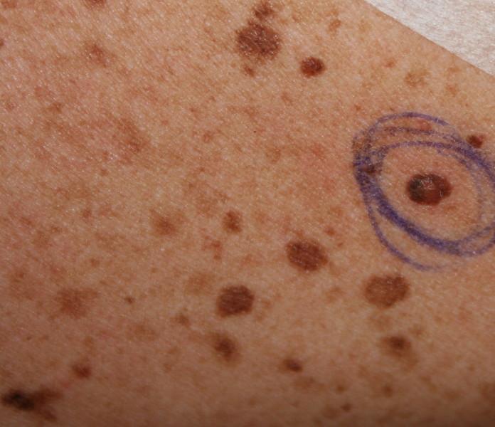 psoriasis acne face